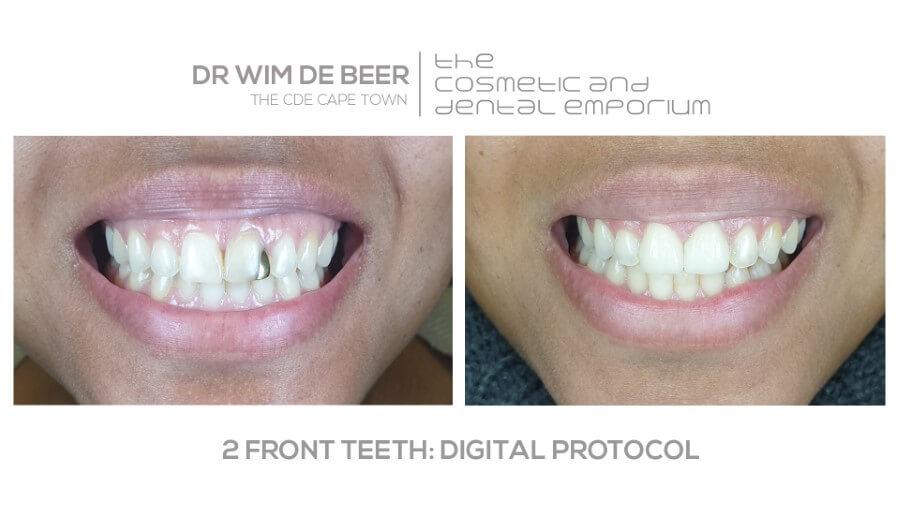 Dr de Beer front smile reconstruction