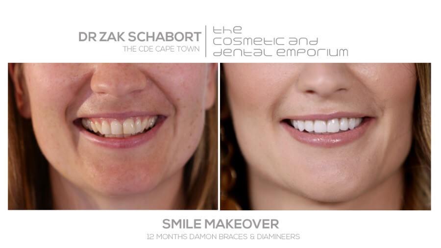 CDE Smile Make-over - Anna results