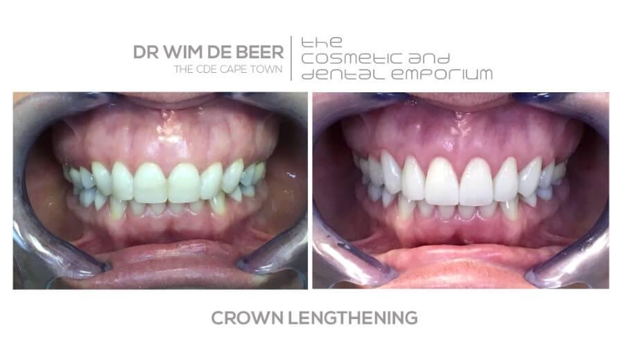 dr de beer crown lengthening results