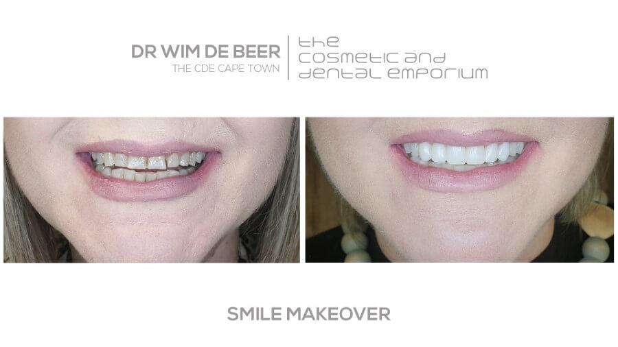 Smile makeover performed by Dr. De Beer