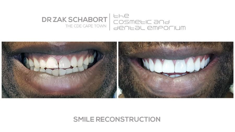 A smile reconstruction performed by Dr. Wim