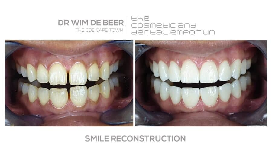 Smile reconstruction performed by Dr. de Beer