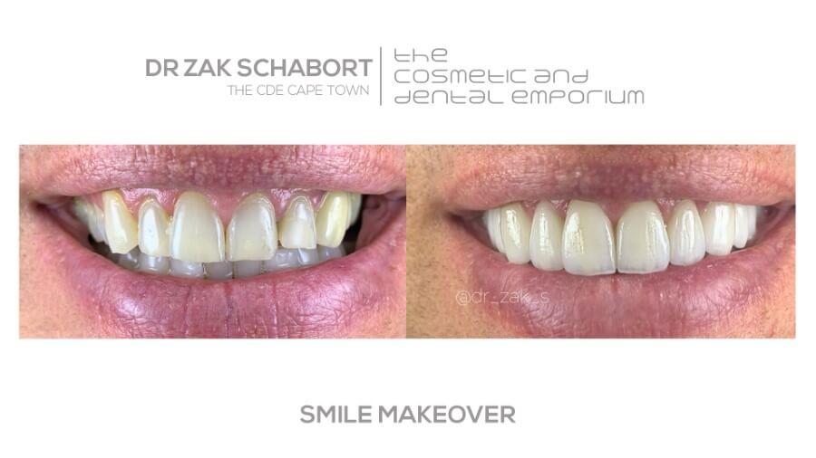 Smile makeover performed by Dr. Zak