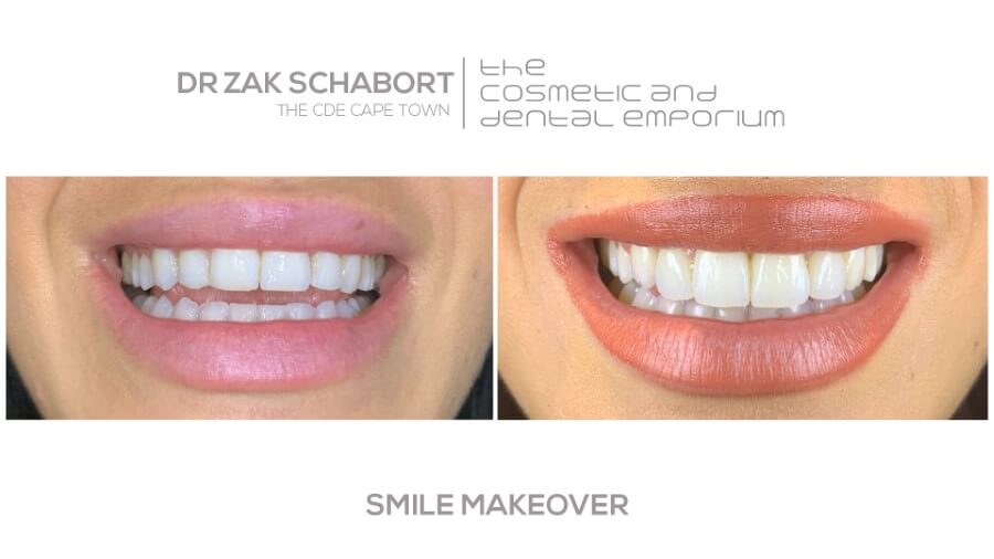 Dr Zak Smile Makeover - Cape Town Dentist - 021 418 2668