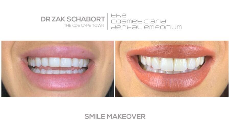 Dr Zak Smile Makeover - Cape Town Dentist - 021 418 2668